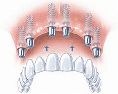 All on 6, all on 4 , Osstem Dental implants - Krakow