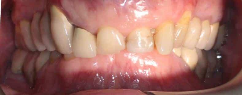 Dental treatment in Poland, Beofre dental treatment