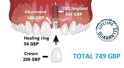 Dio implant price