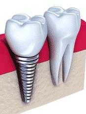 dental implants in bone simulation