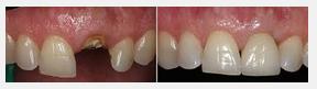 dentist Krakow - Poland